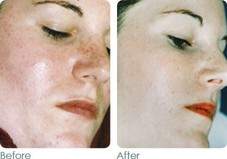 Roseaca  Before & After photos using Glymed Plus products