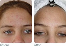 Acne  Before & After Photos
