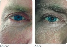 Wrinkles and fine lines Before & After
