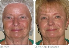 Glymed Plus Chocolate Resuce Mask  Before & After