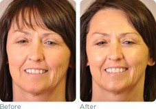 Glymend Plus Stem Cell Serum  Before & After