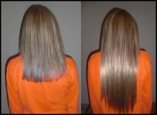 Before and after Fusion Extensions