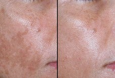 Before and after a derma treatment