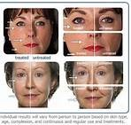 Galvanic Anti-Age Treatment...Amazing Results!