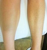 Sugared legs-before and after