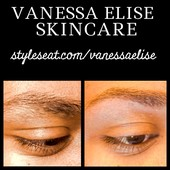 #1109030 Vanessa Elise's Appointment Photo taken in Skincare by Vanessa Elise, San Francisco