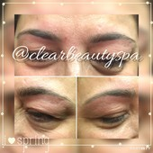 After of eyebrow threading.